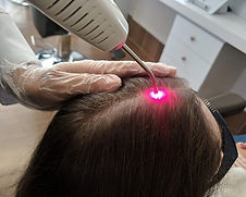 terapia-capilar-fotobiomodulacao-laser-l