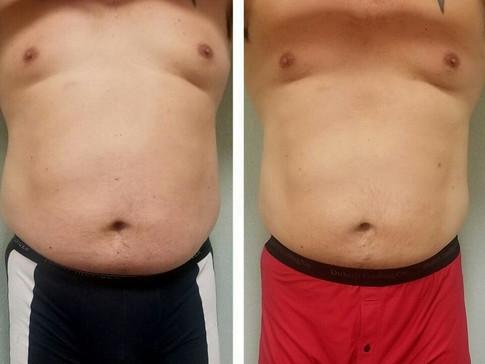 5 weeks 8 treatments