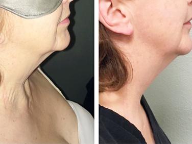 1 Face Treatment