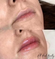 no needle lip filler