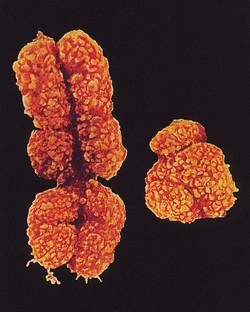 Chromosomes XY