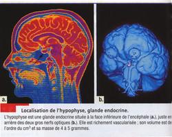 Hypophyse localisation