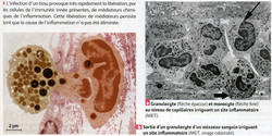 Granulocyte inflammation