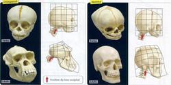 Comparaison foetus homme chimpanzé