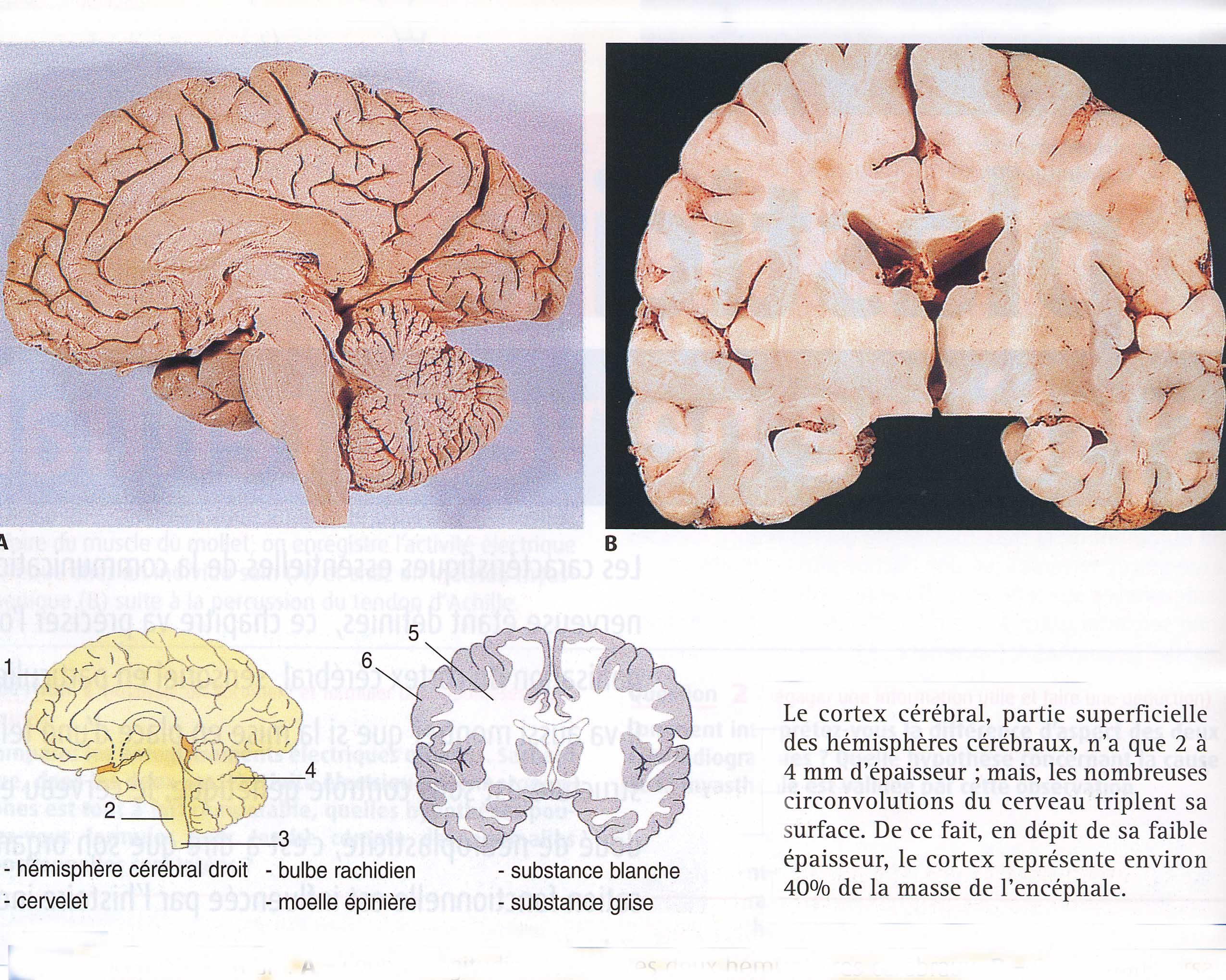 Cerveau en coupe