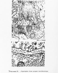 Synapse microscope