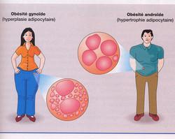 Obésité hétérosexuelle