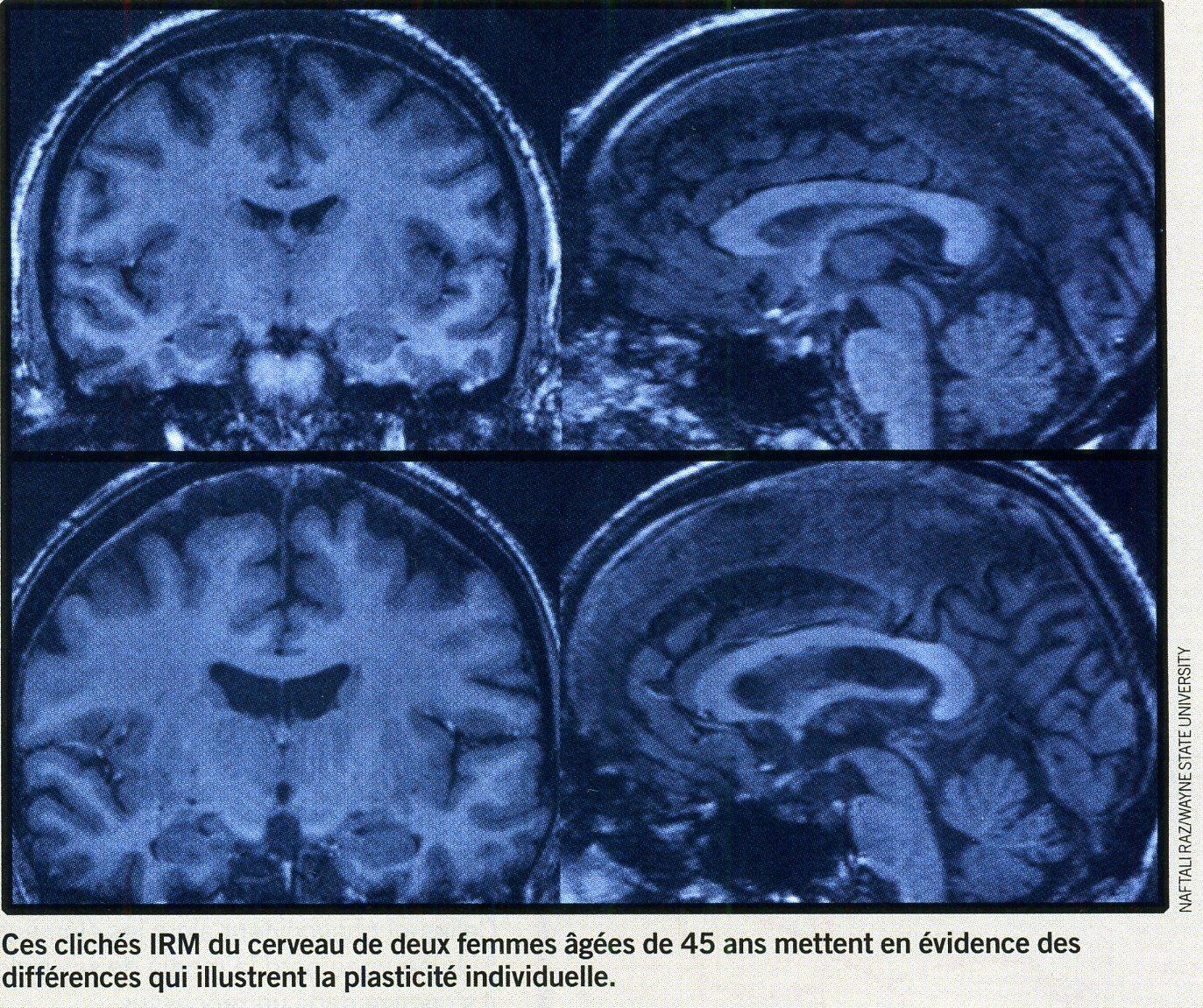 Cerveau plasticité différence