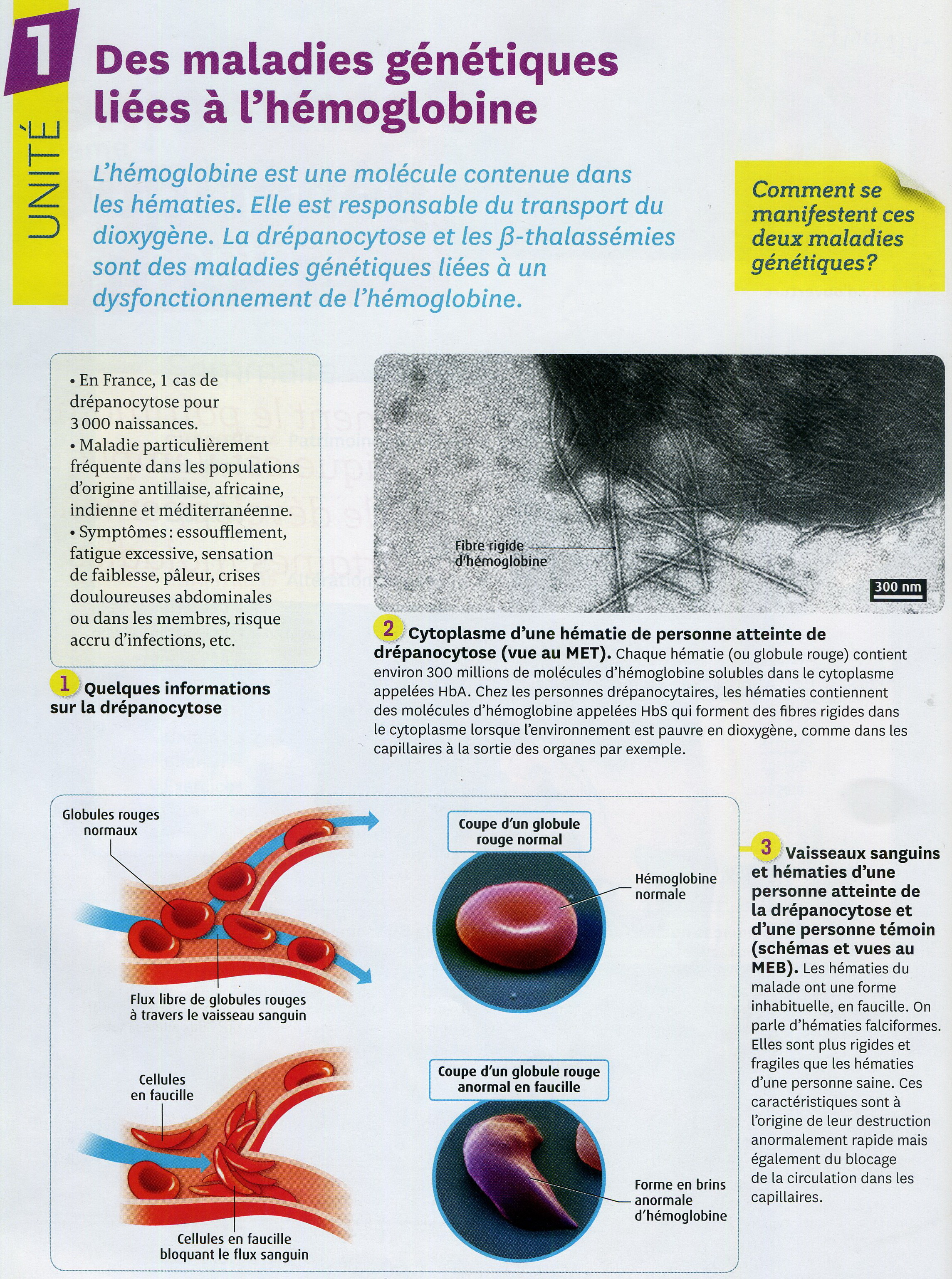 Drépanocytose activité 1 (1)