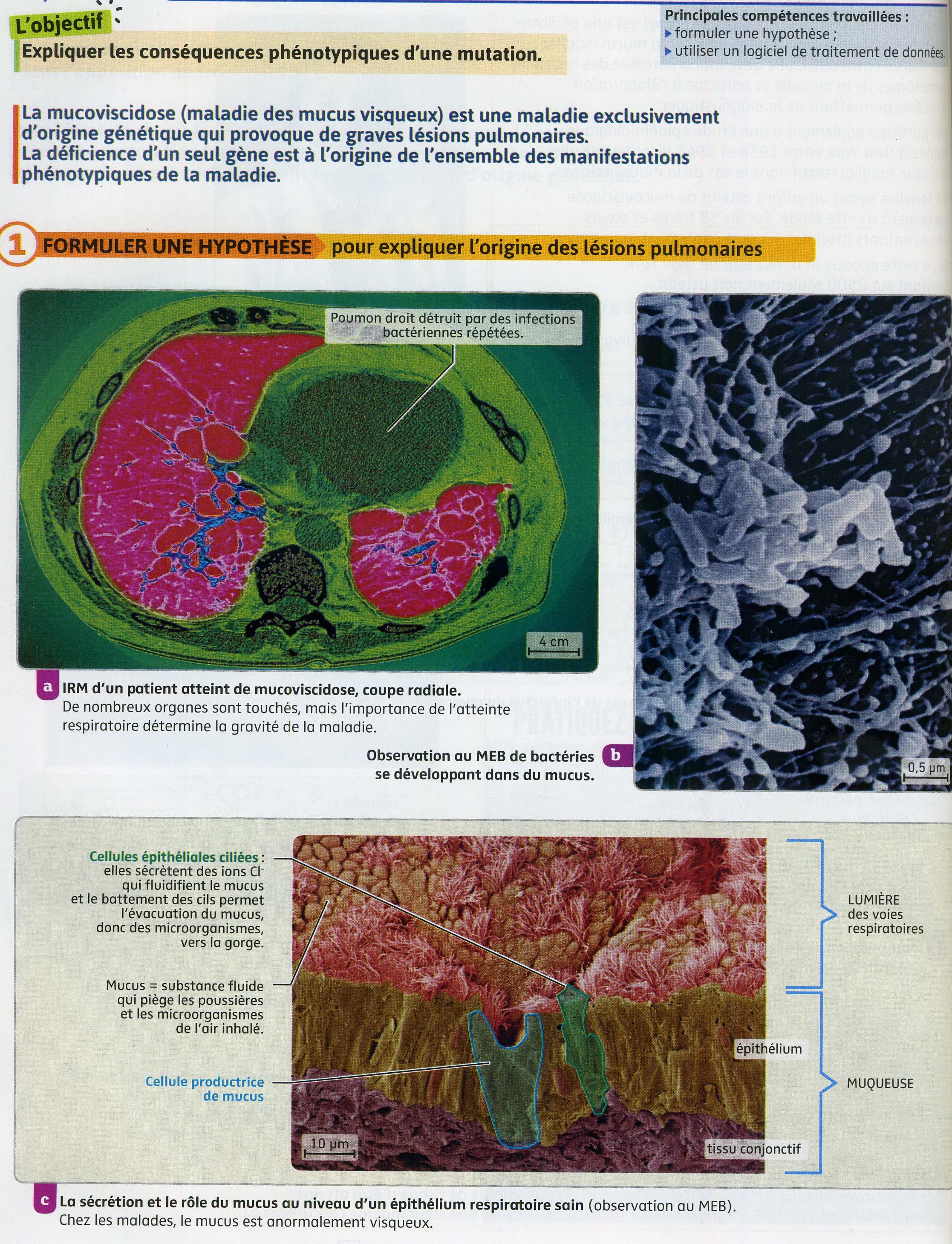 Mucoviscidose_activité 3_(1)