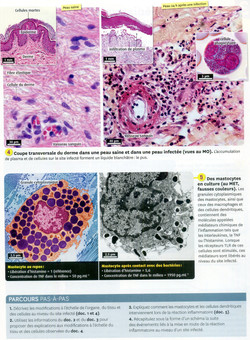 Activité 1 inflammation (2)