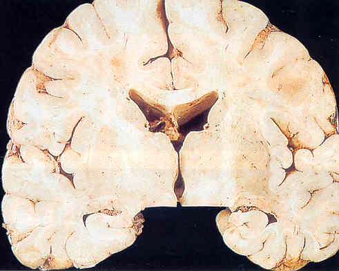 Cerveau coupe transversale