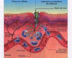 Inflammation par blessure