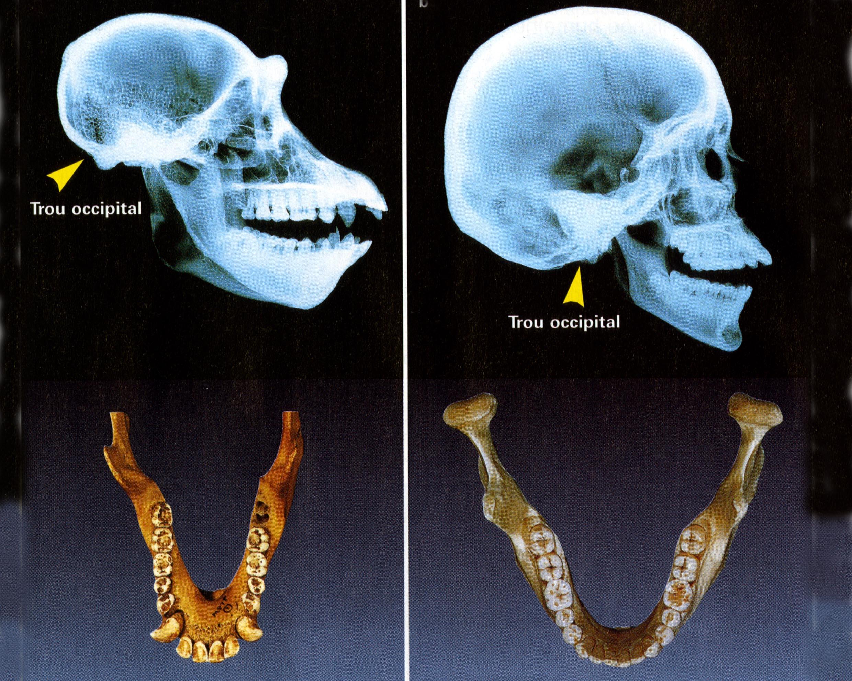 Trou occipital machoire homme singe