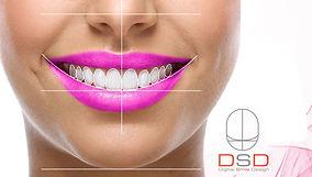 digital smile design dsd in the denal zone clinic in dubai by top dentist