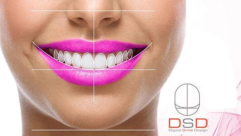 digital smile desgin dsd in the denal zone clinic in dubai by top dentist