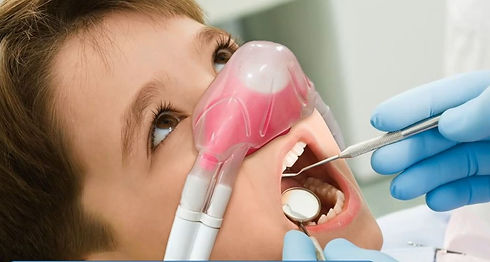 sedation for children by nirtrous oxide in the denal zone clinic in dubai by top dentist