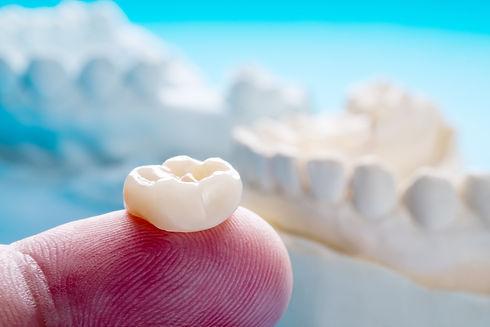 dental crown in the denal zone clinic in dubai by top dentist