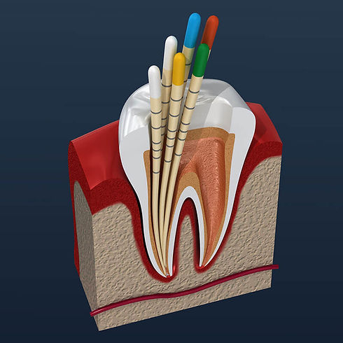 root canal treatment in the denal zone clinic in dubai by top dentist
