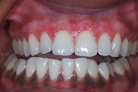 gum depigmentation in the denal zone clinic in dubai by top dentist