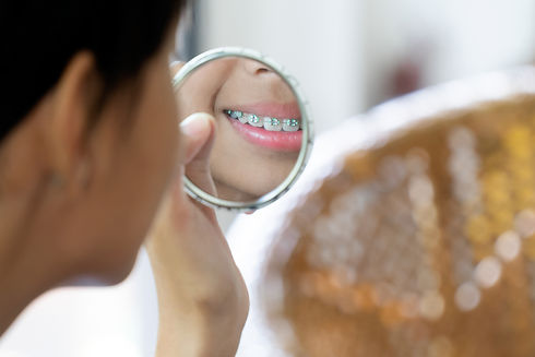 care for your braces in the denal zone clinic in dubai by top dentist