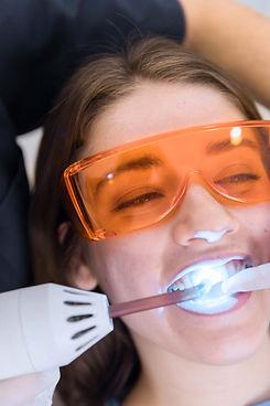 laser teeth whitening in the denal zone