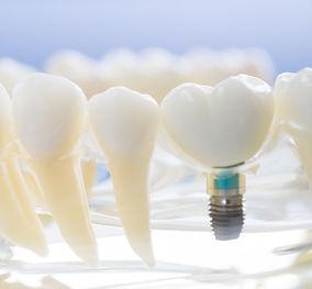 same day impalnt in the denal zone clinic in dubai by top dentist