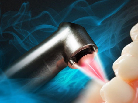 Introduction To Laser Applications in Dental Treatments