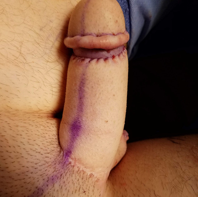 RF Penis