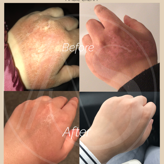 Miracle Oil - Before & After
