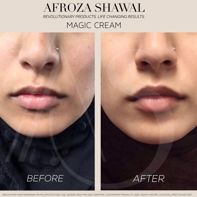 Magic Cream - Before & After