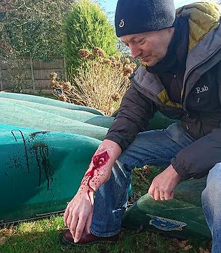 arm injury.JPG