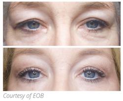 eob eyes.PNG