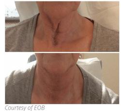 eob neck.PNG