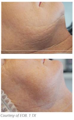 eob wrinkles.PNG