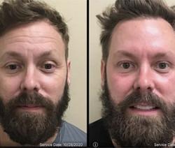 Before After Beard.jpg
