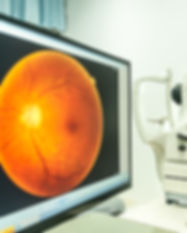 fundus camera use for  examination eye