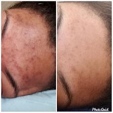 Skin Pic.jpg
