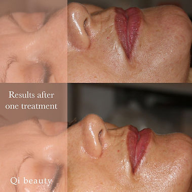 qi-beauty-before-after-one-treatment.JPG
