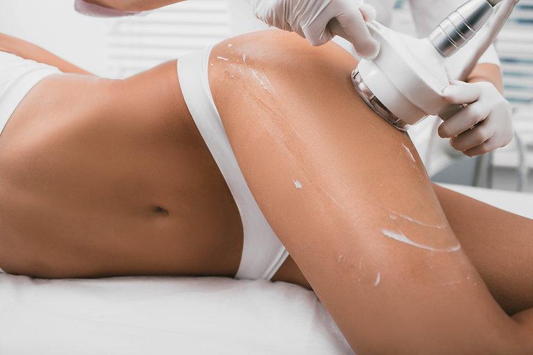 woman having cavitation, procedure remov