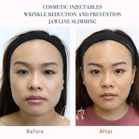 botox jawline slimming