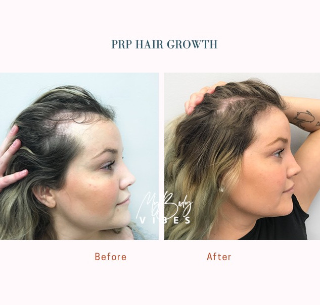 prp hair.jpeg