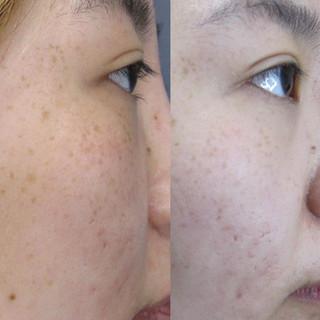 picolaser pigmentation removal