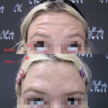 anti-wrinkle injection-forehead.jpeg