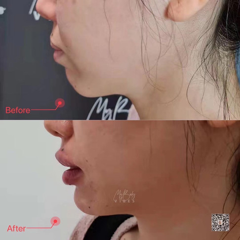 chin and lip filler