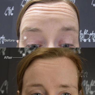 anti wrinkle forehead.jpeg