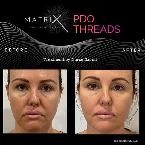 matrix-pdo-before-after-6.jpg