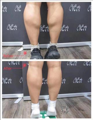 anti wrinkle injection-calf.jpeg