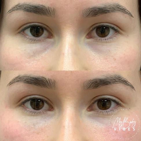 prp eye 2.jpg