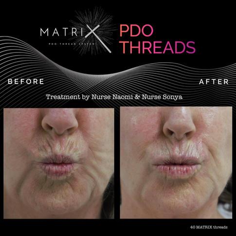 matrix-pdo-before-after-3.jpg